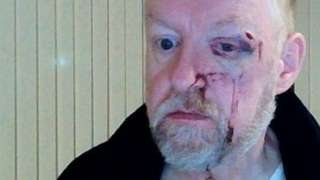 Father Colin Mason with an injured and bloodied face