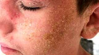 Barney Rae's eczema
