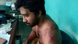 An injured Dr Senapati