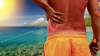 Man with a sunburnt back