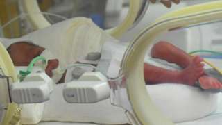 One of the nonuplets in an incubator in Casablanca, Morocco