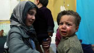 Trẻ em bị thương ở Ghouta
