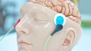 贴附有电极的大脑模型