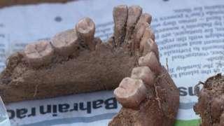 Human teeth and jaw