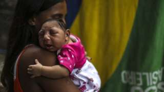 Mother holding her daughter, born with microcephaly from the Zika virus