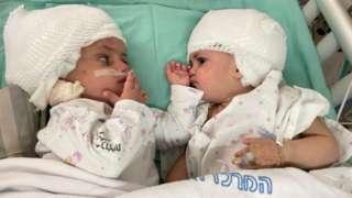 Близнакиње након операције