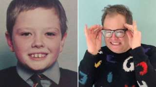 Alan Carr, young and older