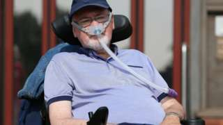 35342060e77 Noel Conway has motor neurone disease and has been trying to change the law  on assisted dying.