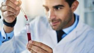 laborant s epruvetom krvi