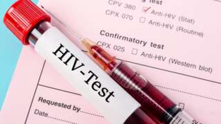 ตรวจเลือดหาเอชไอวี