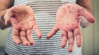 Foto mostra as mãos e parte do tronco de uma mulher. A pele apresenta manchas avermelhadas sugestivas de sarampo