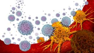 An illustration of how immunotherapy attacks cancer cells