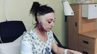 Adele Bellis at hospital