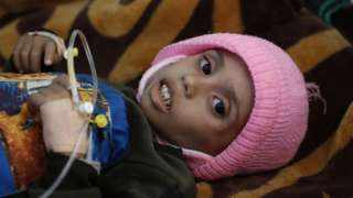 A malnourished child at a hospital in the rebel-controlled Yemeni capital, Sanaa (13 January 2021)