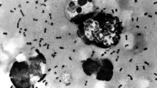 A bubonic plague smear, prepared from a lymph removed from an adenopathic lymph node