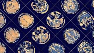 Exame de imagem cerebral, mostrando cérebro e cabeça em várias posições