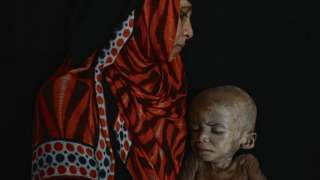 Fome no Iêmen