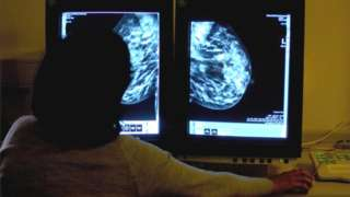 Médica analisa imagem de mamografia