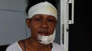 Debbie Kaore in bandages
