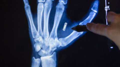 An x-ray showing an RFID microchip implanted in a human hand
