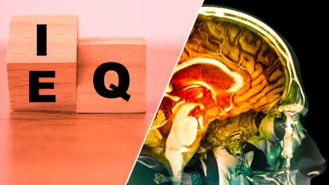 Blocks with letters on and a human brain