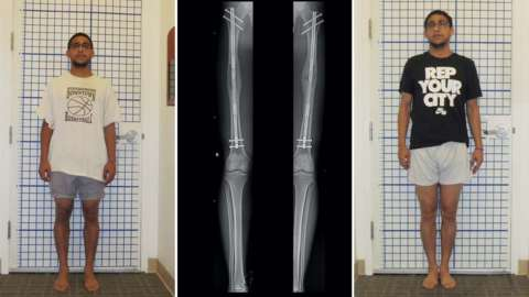 Split image of a man before, during and after leg lengthening cosmetic surgery