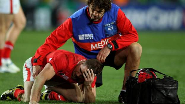 Rugby study finds brain affected in one season thumbnail