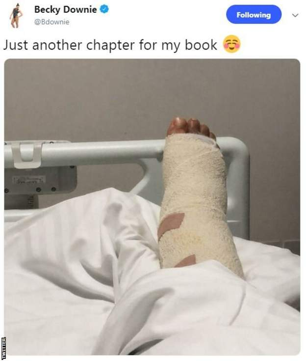 Becky Downie tweet showing her right ankle in plaster