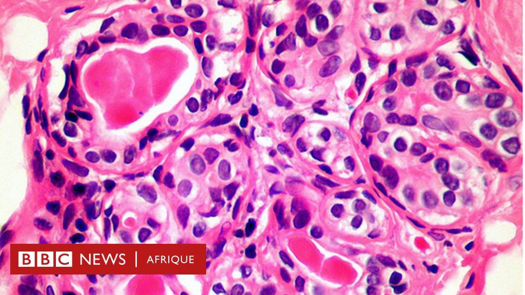 Une nouvelle découverte dans le système immunitaire