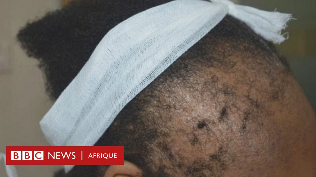 Alopécie : ces coiffures qui nous font perdre nos cheveux !