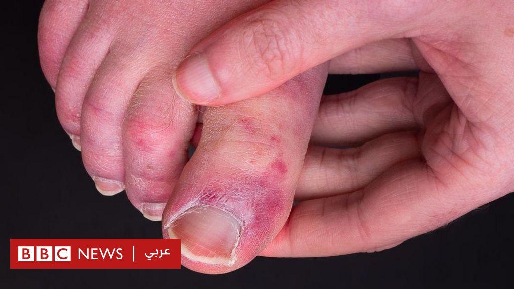 """فيروس كورونا: دراسة حديثة تكشف أسباب الإصابة بـ""""أصابع كوفيد"""""""