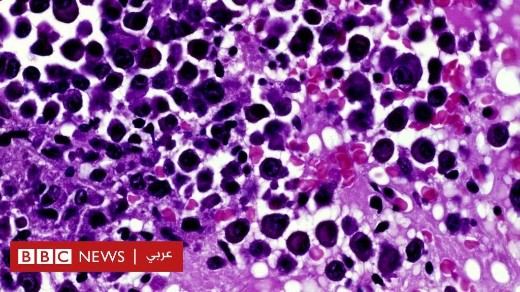 السرطان: عقاقير جديدة ستحقق  نجاحا كبيرا  في علاج مرض العصر - BBC News Arabic
