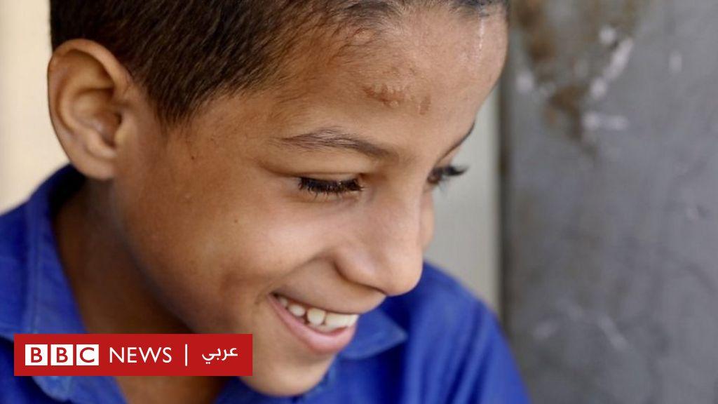 اليمن: قصة صبي كفيف يبلغ 9 سنوات ويدرس قرب خط القتال
