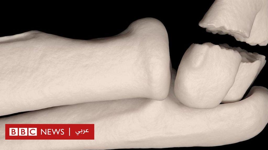 645352e8d خمسة معتقدات خاطئة عن كسور العظام - BBC News Arabic