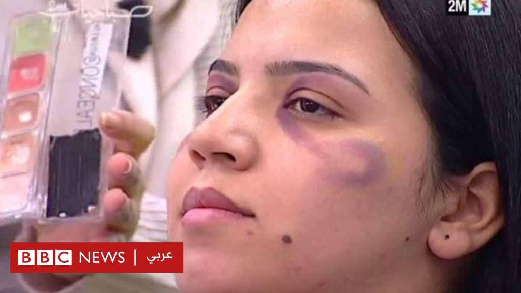 """قناة مغربية تعتذر عن """"تعليم النساء كيفية إخفاء آثار العنف المنزلي"""""""