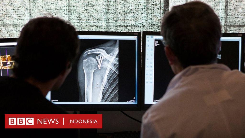 Lima Mitos Keliru Soal Patah Tulang Bbc News Indonesia