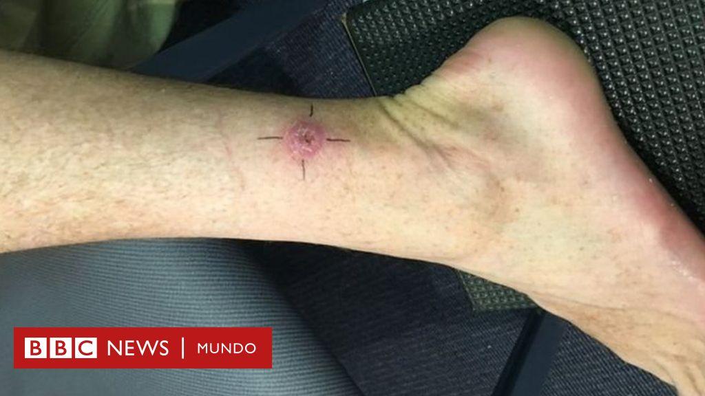 Cómo curar la infección severa de la piel