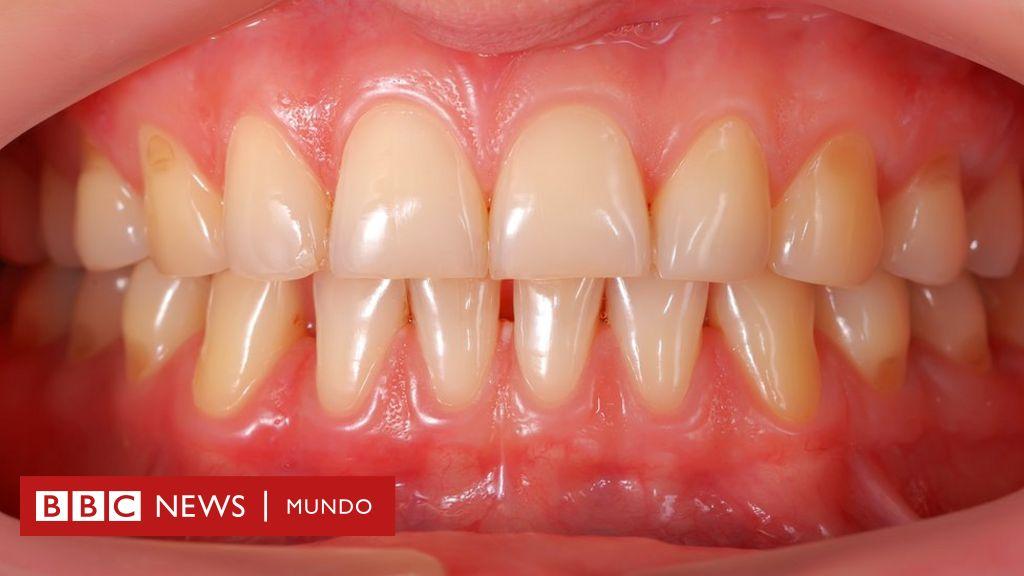 estudio de diabetes y enfermedad periodontal