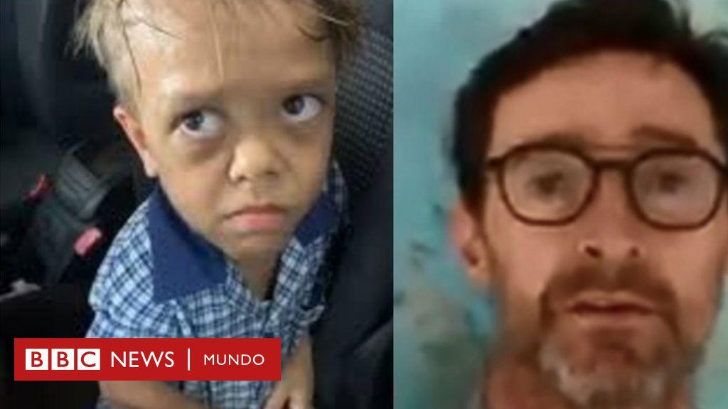 El estremecedor video de un niño de 9 años que dice querer suicidarse por el bullying que sufre por su enanismo (y el impresionante apoyo que recibió)