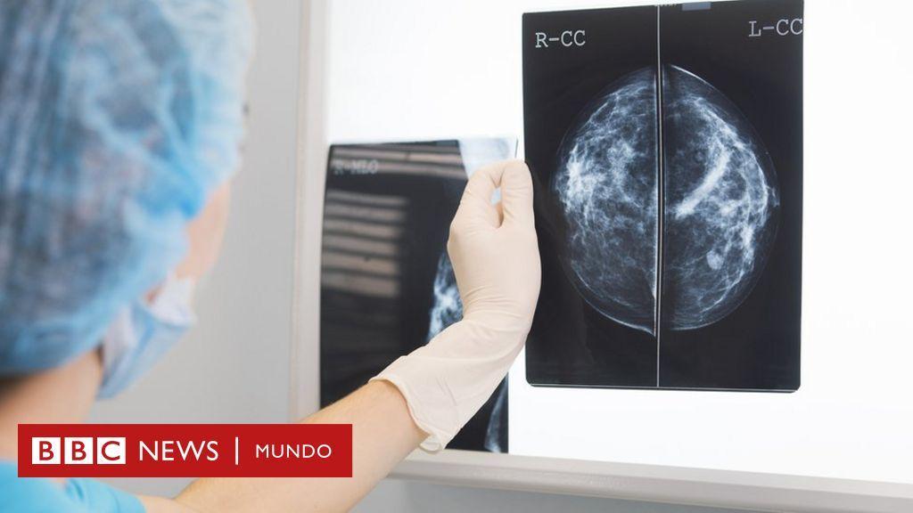 Detección del cáncer de próstata y resultados del tratamiento de una sola institución