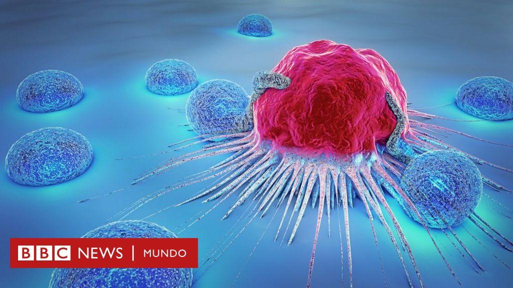 Por qué hay científicos que quieren dejar de llamar cáncer a algunos tumores