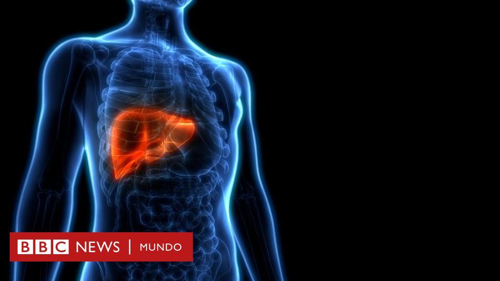 Es la cirrosis de la muerte del hígado
