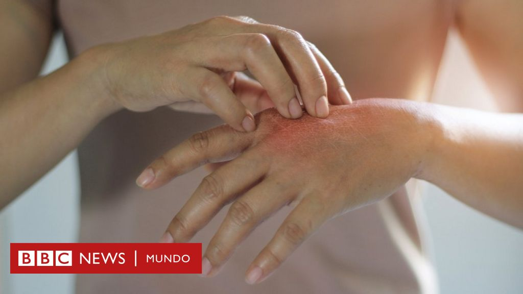 La ansiedad puede causar dolor en el cuero cabelludo