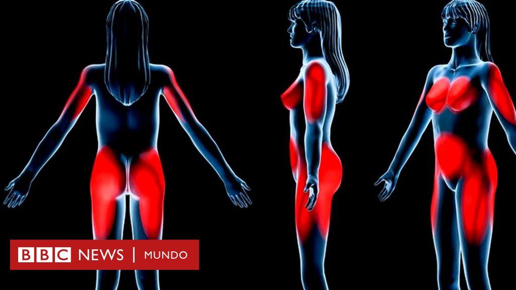 Exceso de grasa en el organismo