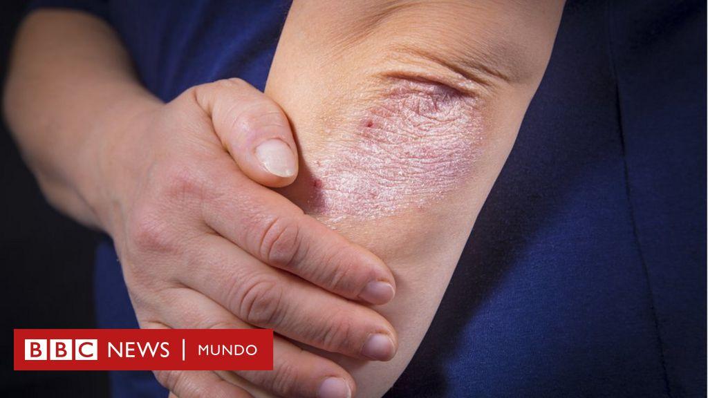 ¿Es la psoriasis una infección de la piel?
