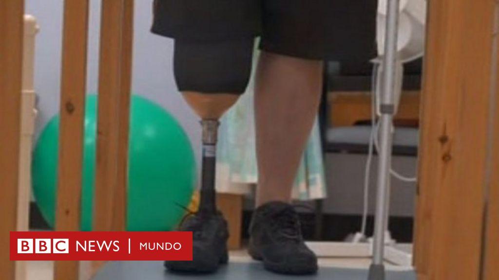 diabetes tipo 2 recuperación de amputación de pierna