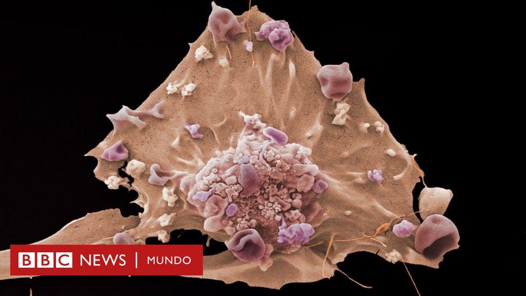 signos de advertencia de cáncer de próstata micción frecuente