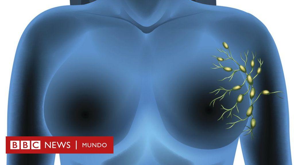 cafc3814e ¿Qué es el ganglio centinela y cómo puede ayudar a combatir el cáncer de  seno y de piel  - BBC News Mundo