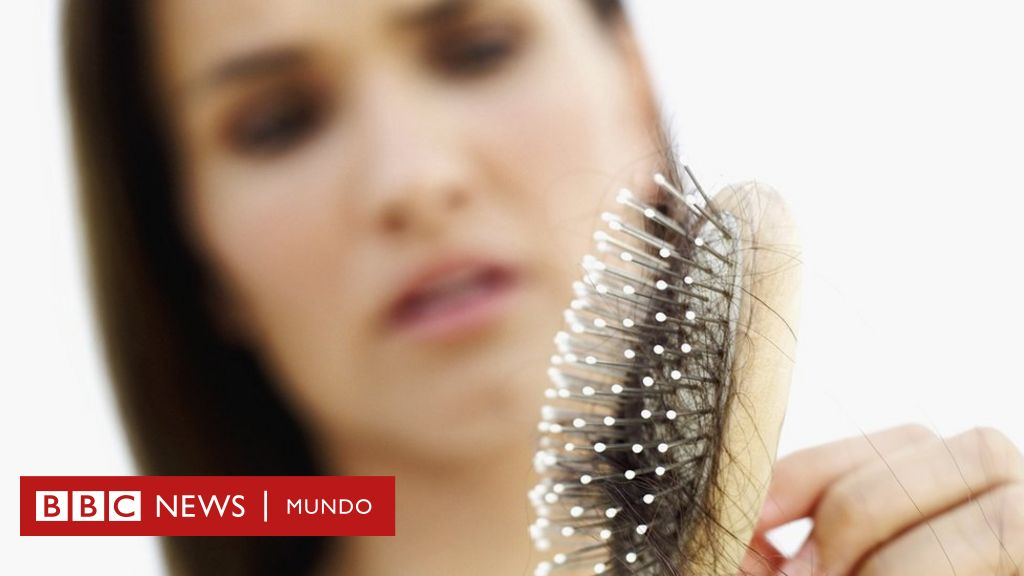 Por Qué Se Nos Cae El Cabello Y Cuándo Debemos Verlo Como Un Alarmante Signo De Alopecia O Una Enfermedad Bbc News Mundo