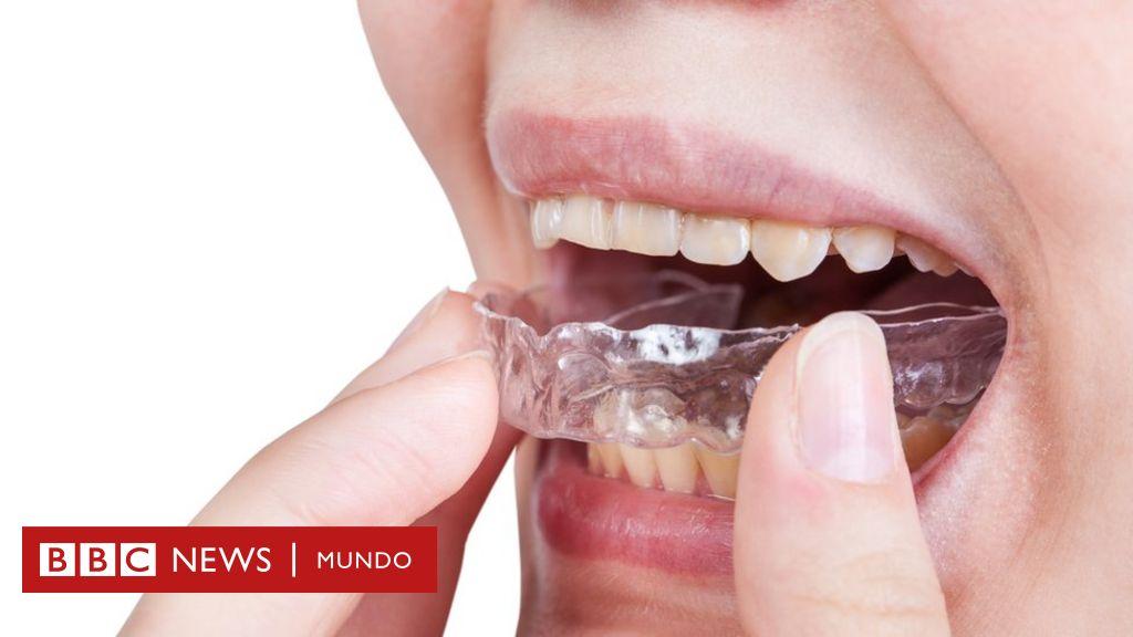 dolor de dientes y encias en niños